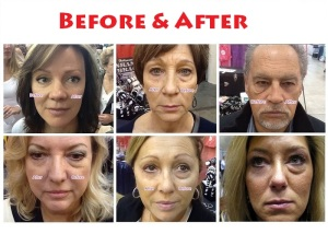 Jeunesse-Instantly-Agelesss-Before-After3